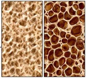 Koštana  gustina I deo – osteopenija i osteoporoza